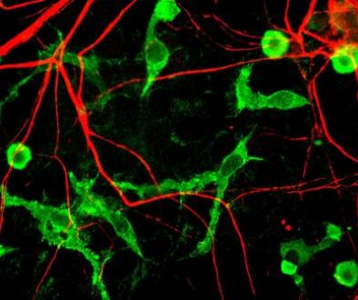 Microglia_and_neurons